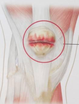 Переломи в області колінного суглоба