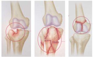 Переломы в области коленного сустава