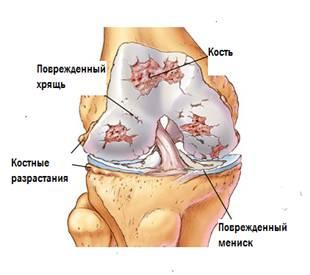 Деформуючий артроз колінного суглоба