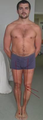 фото пациента с деформацией сустава вследствие артроза