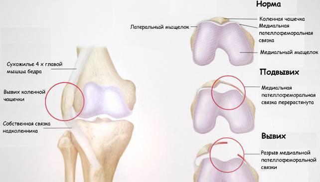 Вывих надколенника, повреждение, перелом, типы повреждения