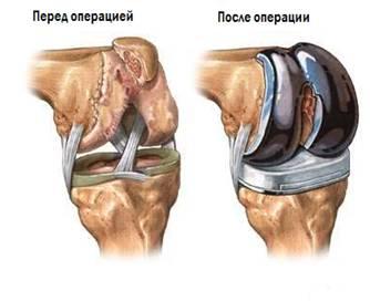 Ендопротезування (заміна) колінного суглоба до і після операції