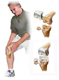 як виглядає заміна колінного суглоба
