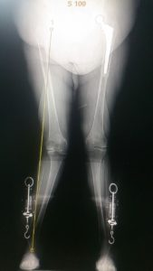 рентген Х-образной деформации колен до протезирования