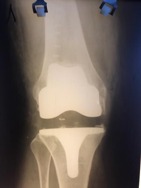 рентген снимок после эндопротезирования через 5 месяцев