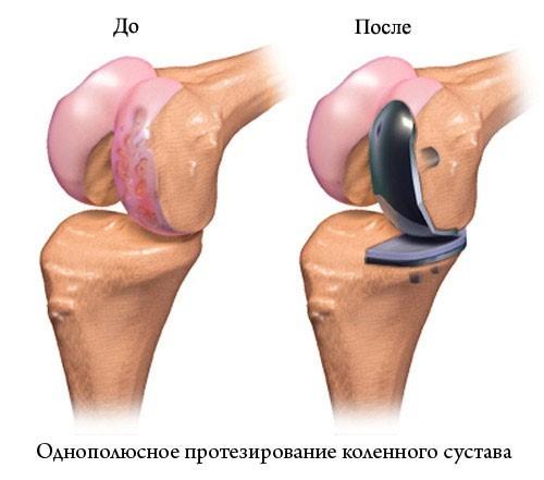 Частичная замена колена