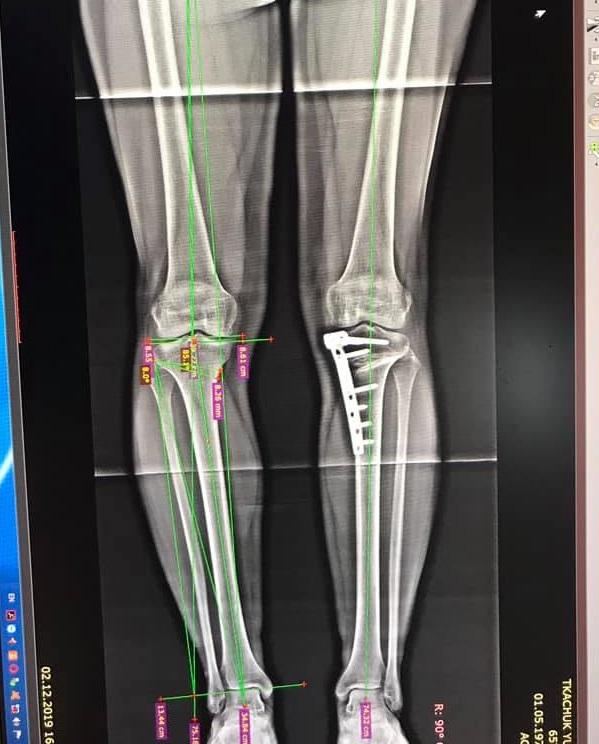 Исправление деформации колена