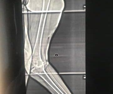 Тяжелая Х деформация обоих ног