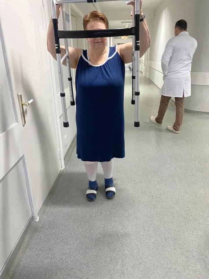 Х-деформация коленных суставов