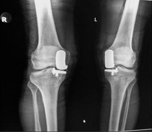 Эндопротезирование двух колен одновременно