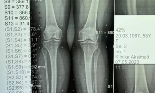 Закрытая остеотомия