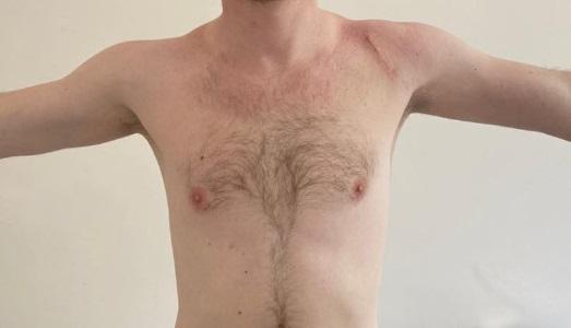 Исправление вывиха плеча