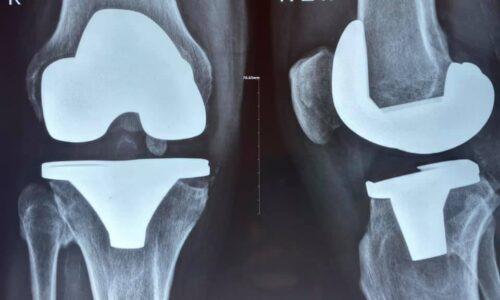 Деформирующийся артроз коленного сустава