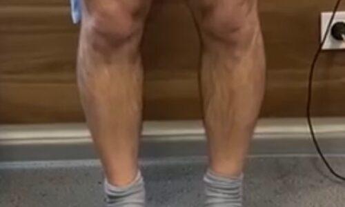 остеотомия коленного сустава