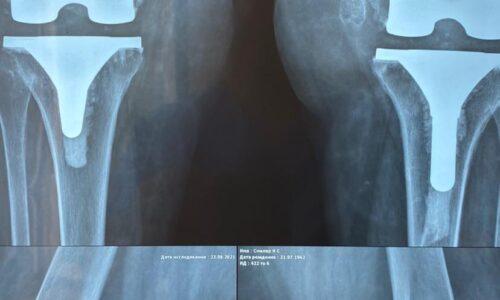 Финальный контроль пациента через 8 месяцев после замены обеих коленных суставов