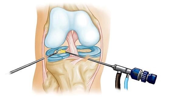 операция на мениске коленного сустава